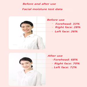 Image 2 - Fabrika doğrudan satış EMS ion maskesi güzellik enstrüman negatif iyon ithalat güzellik maskesi enstrüman masaj konfor yorgunluk test cihazı
