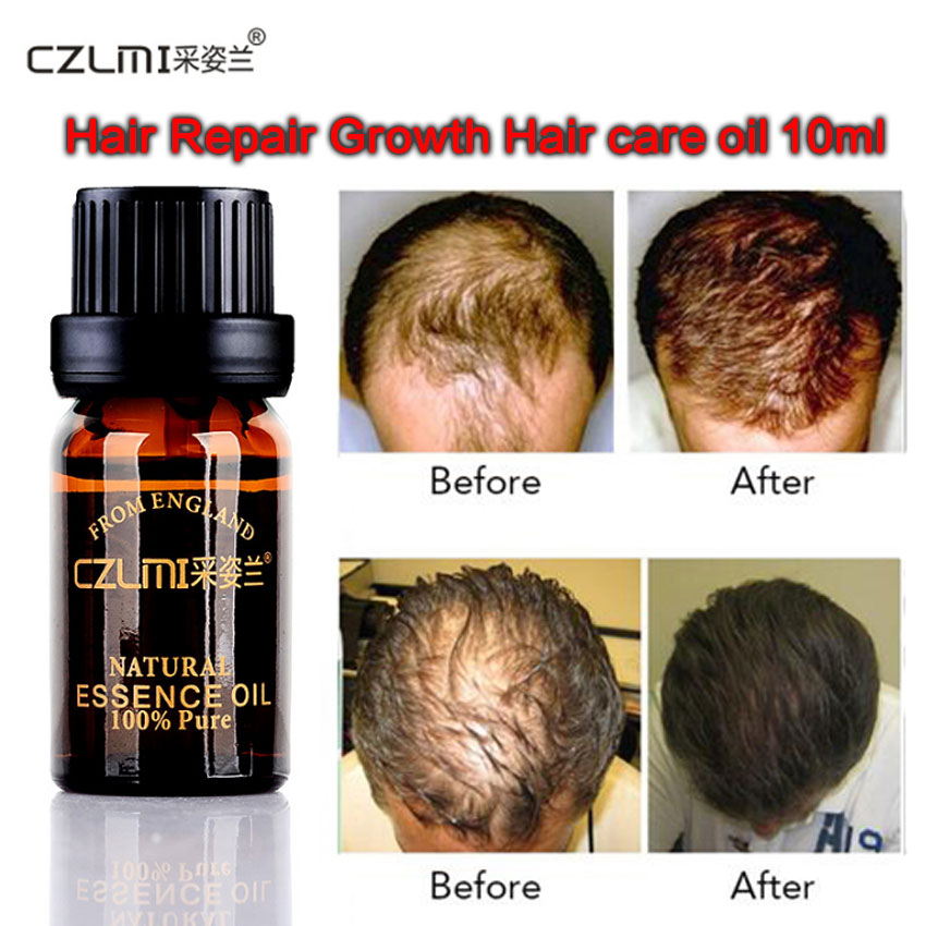 10ml Hair Growth Herb Essence natural oil Product anti Loss