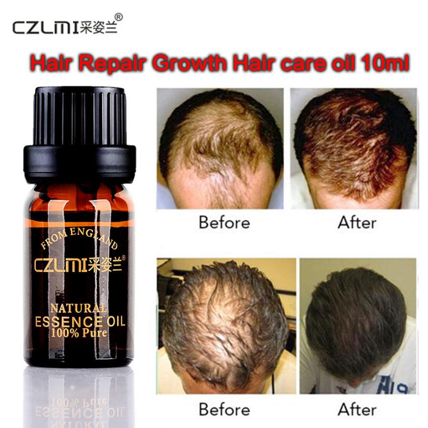 10ml Hair Growth Herb Essence natural oil Product anti Loss Hair balsam tonic hair care keratin treatmen vitamins crecimiento