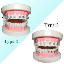 1 piece Dental Orthodontic Teeth Model Metal/Ceramic Brackets Contrast with Buccal Tubes 2016 dental orthodontic study teeth model with metal brackets simulation teeth model teeth