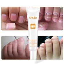 EFERO 1PC Nail Repair Gel Skin Care Cream Anti Fungal Treatment Herb Nails Nourishing Foot Toe Protector 20g