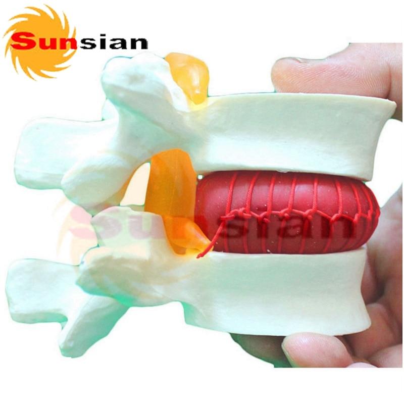 Lumbar Vertebrae with prolapsed disc ,human skeleton anatomical  model normal lumbar set lumbar vertebrae 2pcs 3pcs 4pcs bix a1010 g162
