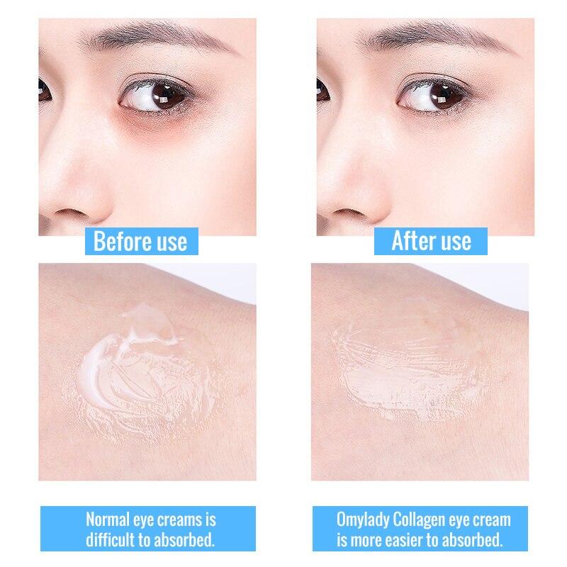 OMYLADY Collagen Anti wrinkle Eye Cream Hyaluronic Acid Moisturizing Surm Remove Dark Circles Tighting Anti puffiness Eye Care