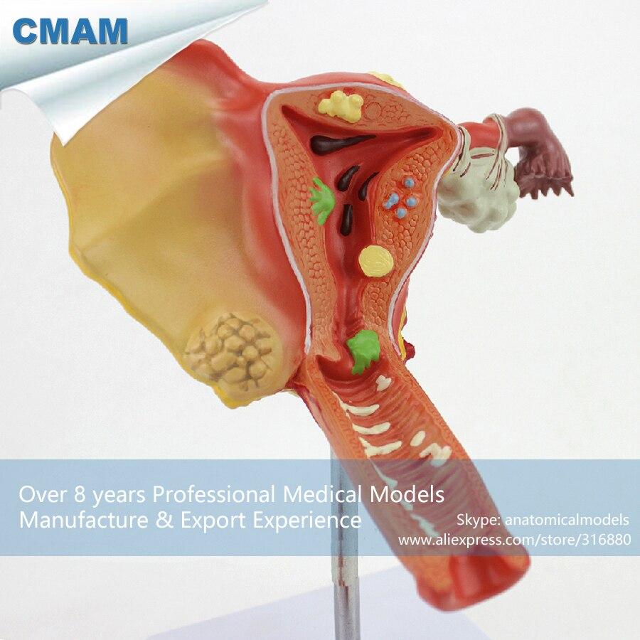 12473 CMAM ANATOMY35 Female Uterine Ovarian Vaginal Disease Medical ...