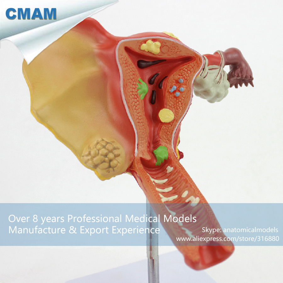 CMAM-ANATOMY35 Female Uterine Ovarian Vaginal Disease Medical Model , Medical Science Educational Teaching Anatomical Models cmam a29 clinical anatomy model of cat medical science educational teaching anatomical models