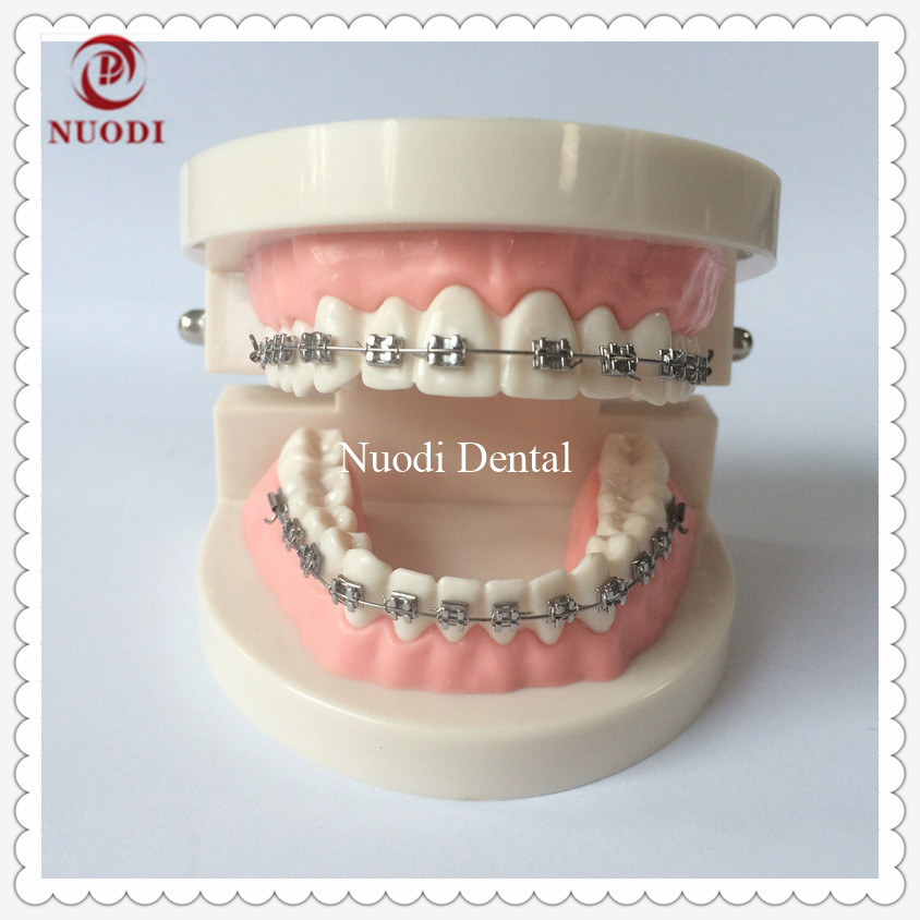 Dental Orthodontic Teeth Model With Bracket/Dental Ortho Metal Bracket Model/Dental Lab Education Orthodontic Tooth Model