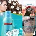 Medicina losshair receta anti-caída del cabello tratamiento del cuero cabelludo del pelo champú cuidado del cabello profesional queratina para tratamientos del cuero cabelludo hairloss7.92