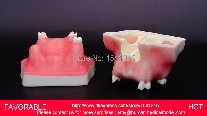 TEETH DENTAL MODEL DENTURES DENTAL TEACHING MODEL,NATOMIACL TOOTH MODELS,MOUTH ORAL CARE MODEL,TOOTH DENTAL MODELGASEN-DEN018 teeth model blue dental orthodontics communication model with 4 types of brackets