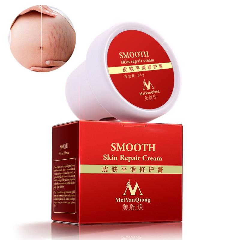 High Quality Skin Care Pregnancy Cream Acne Scar Treatment Stretch Marks Scar Removal Smooth Skin Repair Cream Free Shipping