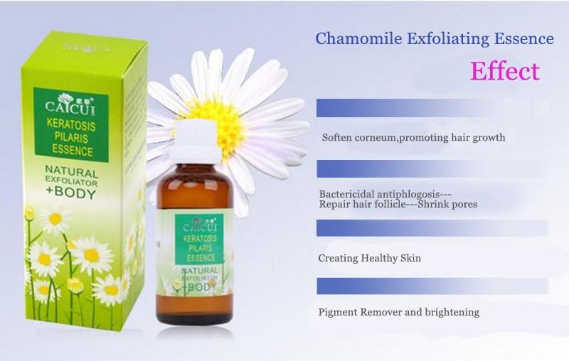 Health Skin Care Genuine Chamomile Exfoliating Serum Remove Chicken Skin Folliculitis Treatment Shrink Pores Essential Oil 50ml 2