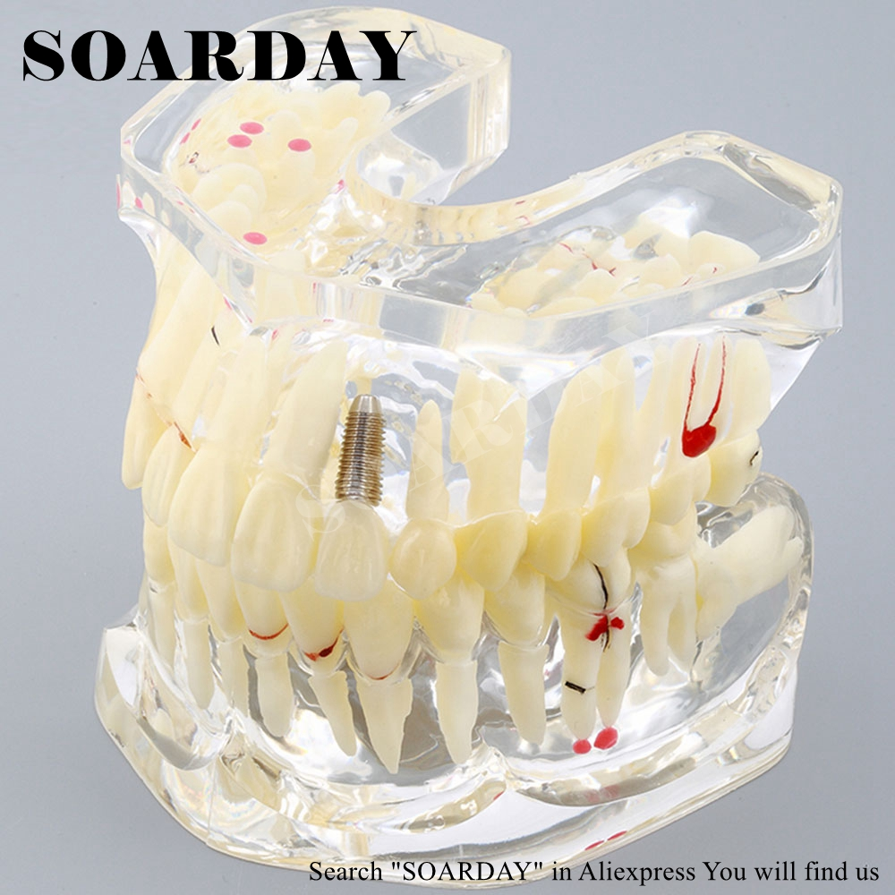 SOARDAY 1 piece 2 times Dental Pathological Model Display deep Caries shallow Caries Teaching Model soarday 1 piece 2 times dental pathological model implant bridge crown treatment oral teaching model