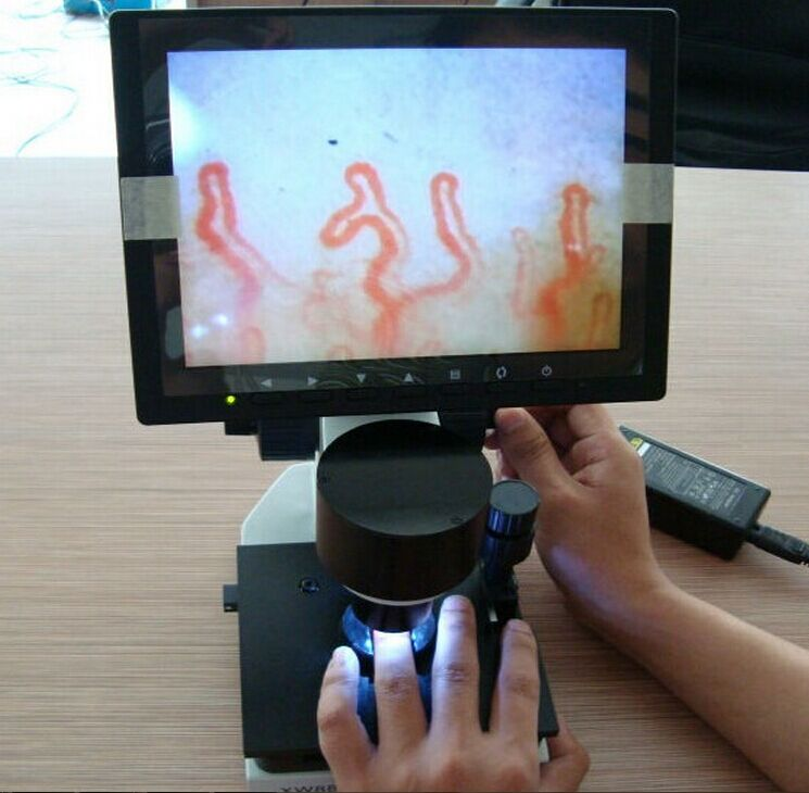 все цены на 8 ' Color Screen Health Analyzer Nailfold capillary microcirculation diagnosis онлайн