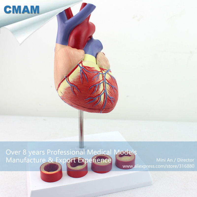 CMAM-HEART05 Life-size Human Heart Anatomy in 2 part with 4 Pieces Thrombosis Cross Section ,Anatomy Models > Heart Models cmam viscera01 human anatomy stomach associated of the upper abdomen model in 6 parts