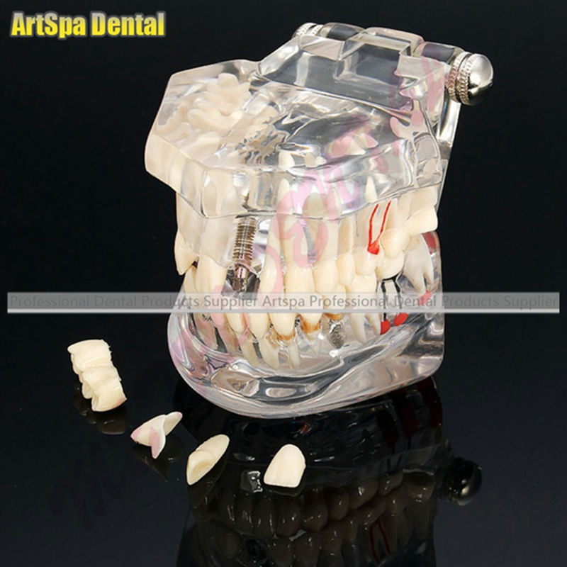Dental Implant Disease Teeth Model With Restoration Bridge Tooth Dentist For Medical Science Dental Disease Teaching Study платье perfect j perfect j pe033ewweu35