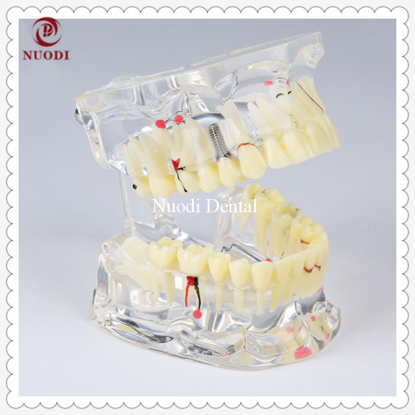 Dental Implant Bridge Model/Education Teeth Model/Removable Implant Crown &abutment/Transparent Adult Pathological Teeth Model