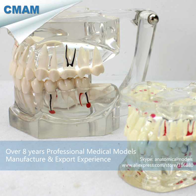 CMAM-DENTAL14 Big Adult Dental Teeth Model, 2x Life Size Transparent Disase Model Show Caries and Pathologies gazal bagri vineet inder singh khinda and shiminder kallar recent advances in caries prevention and immunization
