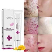 Манго ремонт акне крем против пятен лечение шрамов, от угрей крем против угрей сужение пор отбеливание увлажняющий уход за кожей лица TSLM1