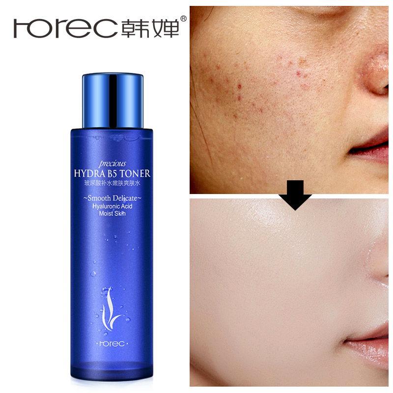 ROREC Hyaluronic Acid Face Whitening Toner Facial Acne Treatment Skin Care Moisturizing Remove Blackheads Oil-Control Essence