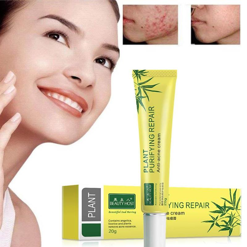20g Acne Scar Removal Cream Aloe Vera Gel Plant Extracts Cleansing Acne Cream Face Skin Care Spots Blemish Marks Treatment