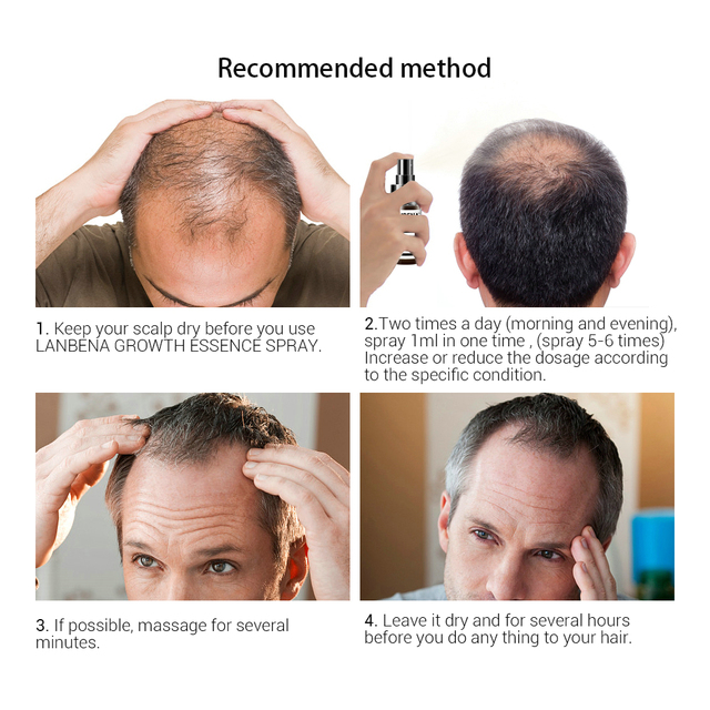 LANBENA Hair Growth Essence Spray Product Preventing Baldness Consolidating Anti Hair Loss Nourish Roots Easy To Carry Hair Care