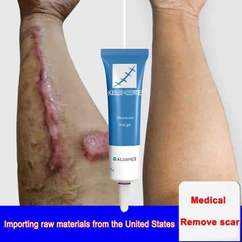 Scar Removal Cream Face Cream For Face anti Acne Scar Stretch Marks Cream Skin Repair Face Cream Acne Spots dark spot remover d ran wonder cream face