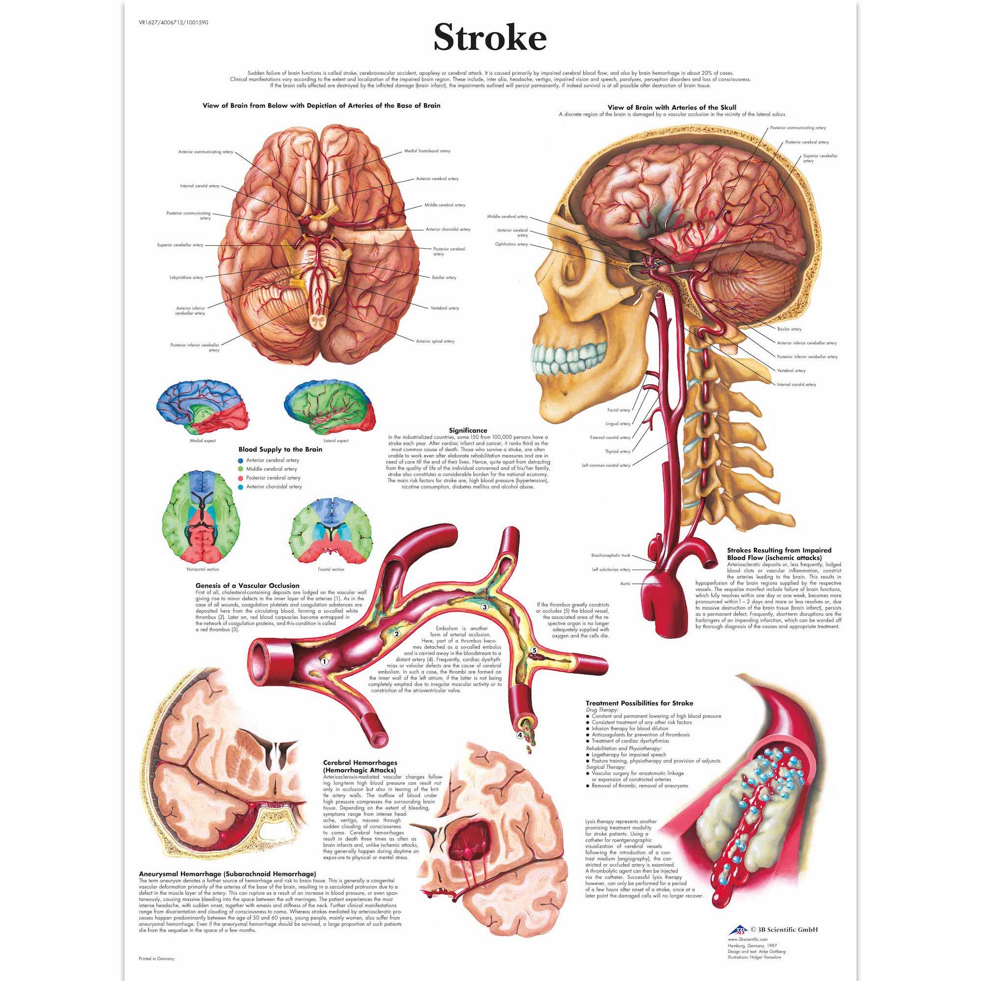 Anatomy Pathology Anatomical Poster Stroke Chart Classic Canvas ...