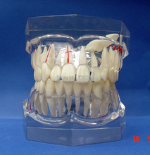 Pathological Model 2 x Magnification Adult teeth,Crystal Material is Qualitative Tooth Pathological Teaching Model