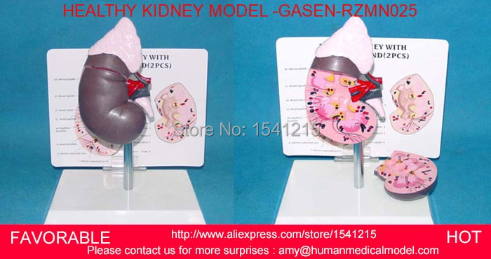HUMAN ANATOMICAL STEREO GLOMERULUS NEPHRON KIDNEY ORGAN MEDICAL  MODEL ,HUMAN REPRODUCTIVE SYSTEM  KIDNEY MODEL GASEN-RZMN025 human anatomical kidney