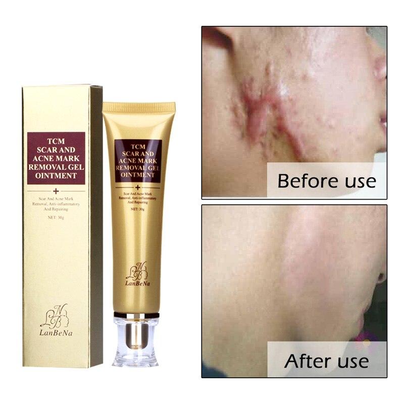 Acné Cicatrice Réparation Crème Ginseng Essence Anti Acné Remover Crème Soins Du Visage Maquillage Taches Vergetures Cicatrice Supprimer Soins de La Peau crème