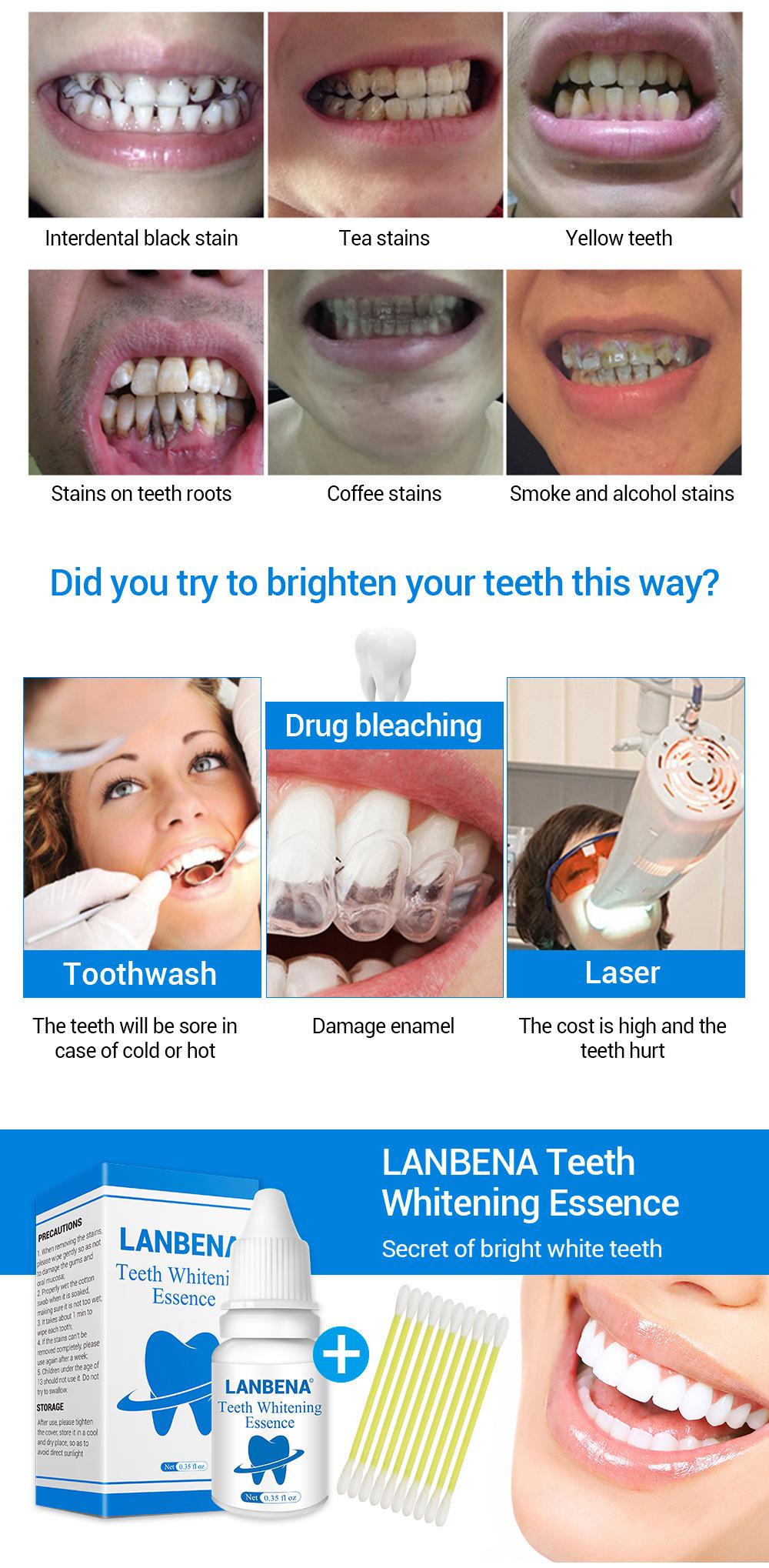 Dişler gevşek, ne yapmalı Bazı yararlı ipuçları