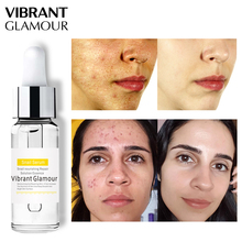 VIBRANT GLAMOUR Snail 100% Plant Extract Face Serum Hyaluronic Acid Liquid Whitening Blemish Essence Mosturizing Anti-acne
