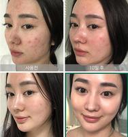 SOME BY MI AHA BHA PHA 30 Days Miracle Toner 150ml + Miracle Serum 50ml + Miracle Cream 50ml Blackheads Remove Acne Treatment 4