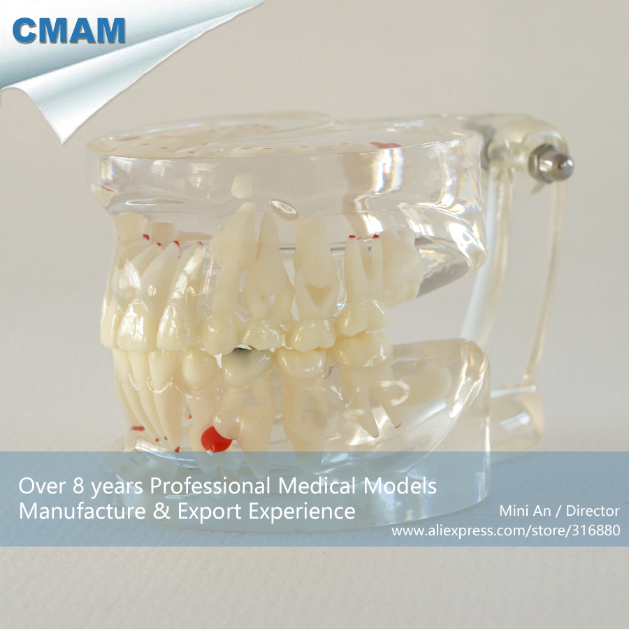 ФОТО CMAM-DH305 Mixed Age Transparent Jaw Model for Patient Education