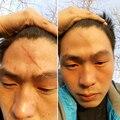 Reparação da cicatriz Da Pele Cuidados Com A Pele Óleo Essencial Natural Puro Remove Cicatrizes Cirúrgicas Queimar Escaldadura Reparação Da Pele Da Remoção Da Cicatriz