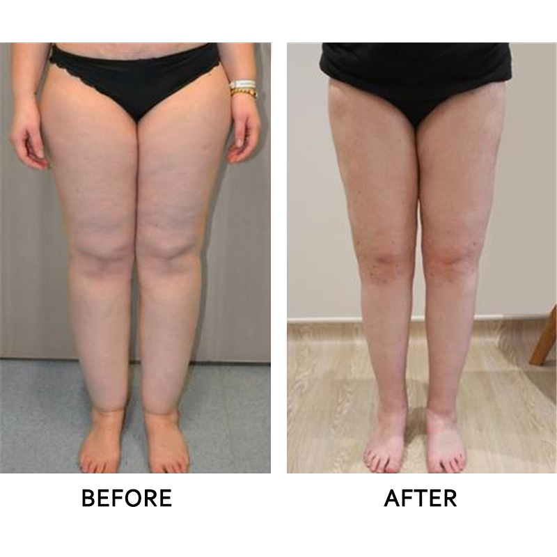 HOT SALE] 10pcs=(5pcs Patches+5pcs Adhesives) Anti Swelling