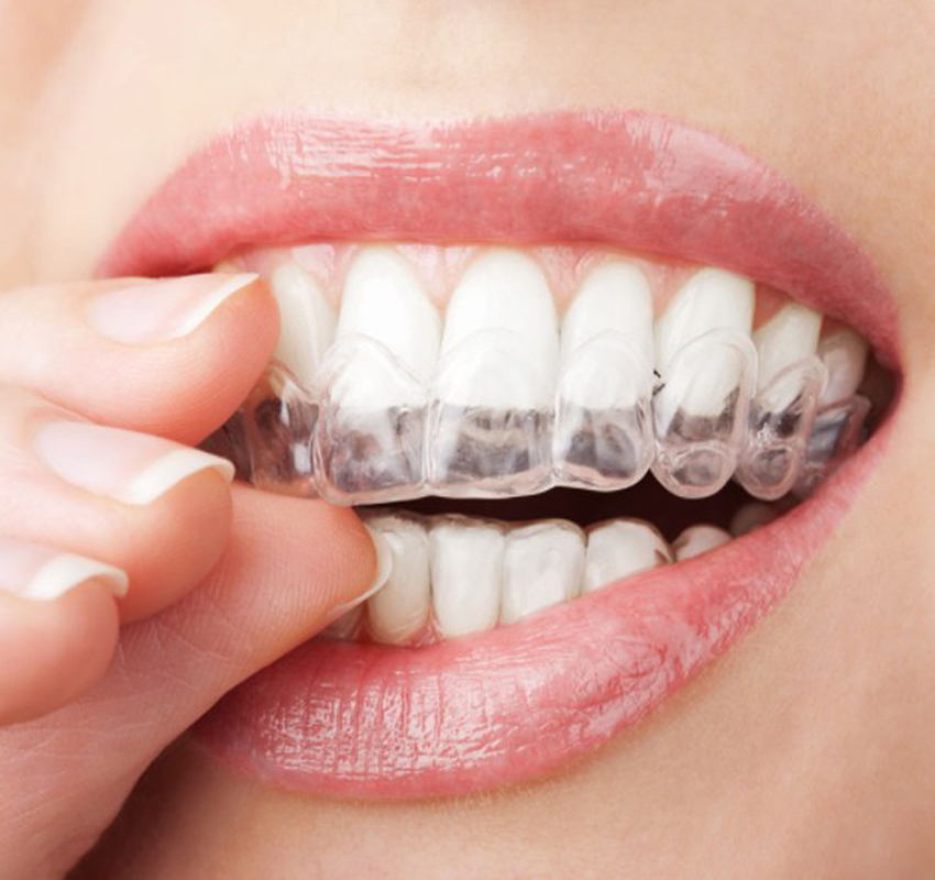 2 Pairs / 4 Pieces Thermoforming Dental Mouthguard Teeth Whitening Trays Bleaching Tooth Whitener Mouth Guard Care Oral Hygiene