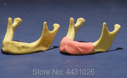 ENOVO The training model of oral cavity dental implant training was used to simulate mandibular artificial dental implant train enovo the dental implant was sutured in the oral cavity of maxillary sinus dentition