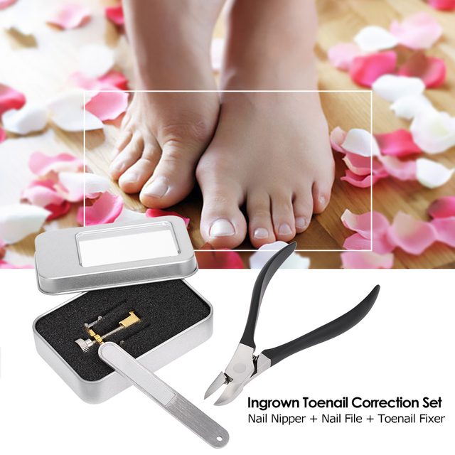 Ingrown Toenail Pedicure Foot Nail Care Tools Ingrown Toe Nail ...