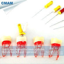 CMAM-TOOTH11 Pulp Chamber Transparent Block with Crown, Root Canal Model