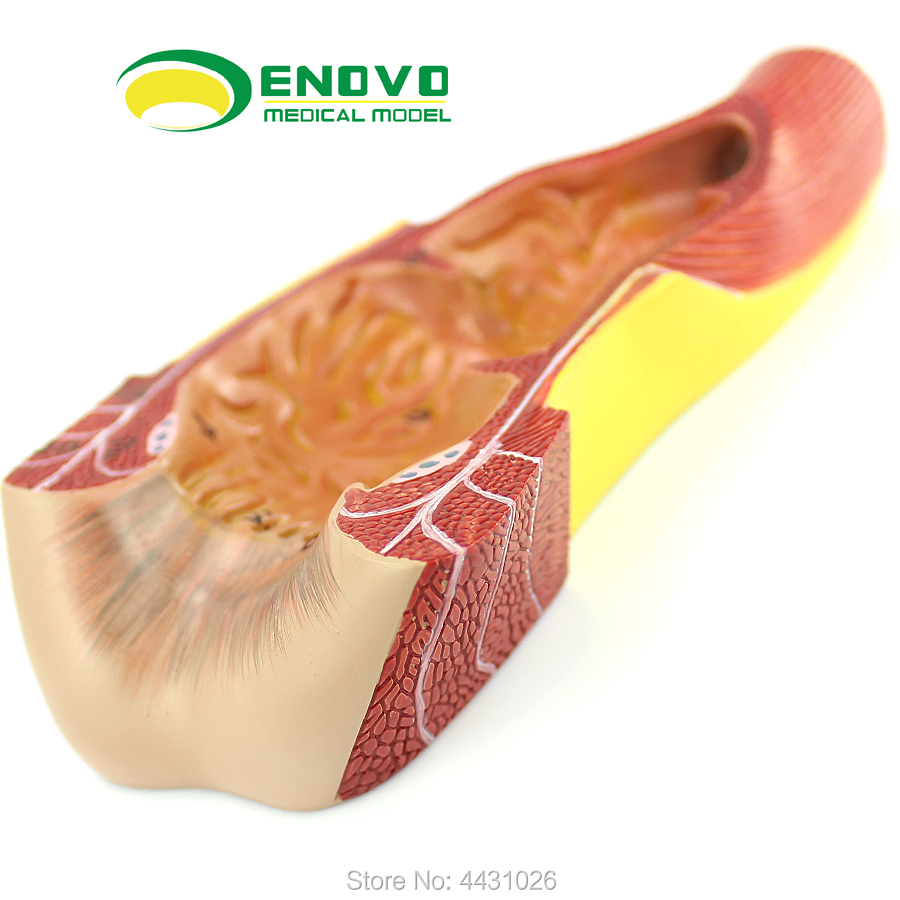 ENOVO Anatomic structure model of anorectal surgery in medical human rectum anal canalENOVO Anatomic structure model of anorectal surgery in medical human rectum anal canal