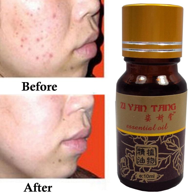 Skin Care 100% Natural  Essential Oil for Anti Acne and Whitening Skin Care Massage Oil 10ml lumene natural code skin perfector 10 vanilla купить