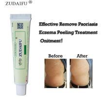 5pcs skin care product relieve Psoriasis Dermatitis Eczema