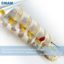 12384 cmam-vertebra01 человека поясничных позвонков w/крестец и копчик анатомия модель, Медицинские товары преподавания анатомические модели