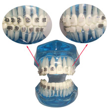 1 piece Dental Orthodontic Teeth Model Self-ligating/Ceramic Brackets Contrast with Buccal Tubes 2016 dental orthodontic study teeth model with metal brackets simulation teeth model teeth