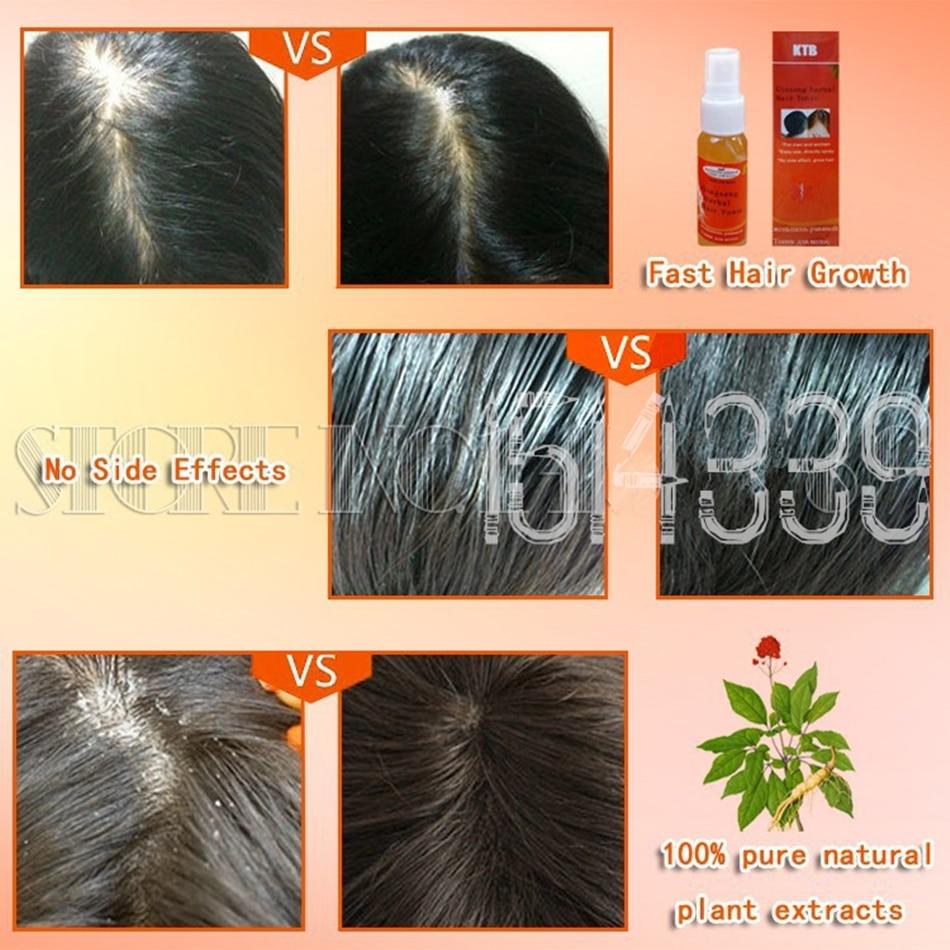 3pc Natural Hair Loss Alopecia Areata Treatment Hair Regrowth Oil