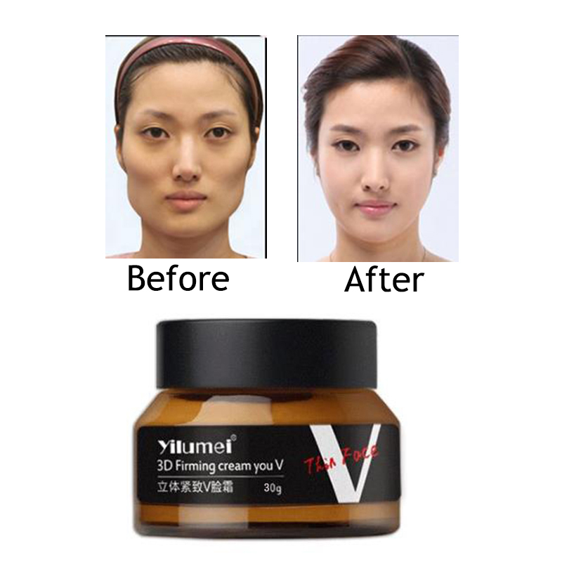 Face Care Pat Little V Face Lifiting Younger Face-Lift Cream Contour Firming Shaping Facial Lift Thin Face Skin Care