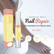 все цены на Nail pencil remover grey finger manicure lotion 4ml онлайн