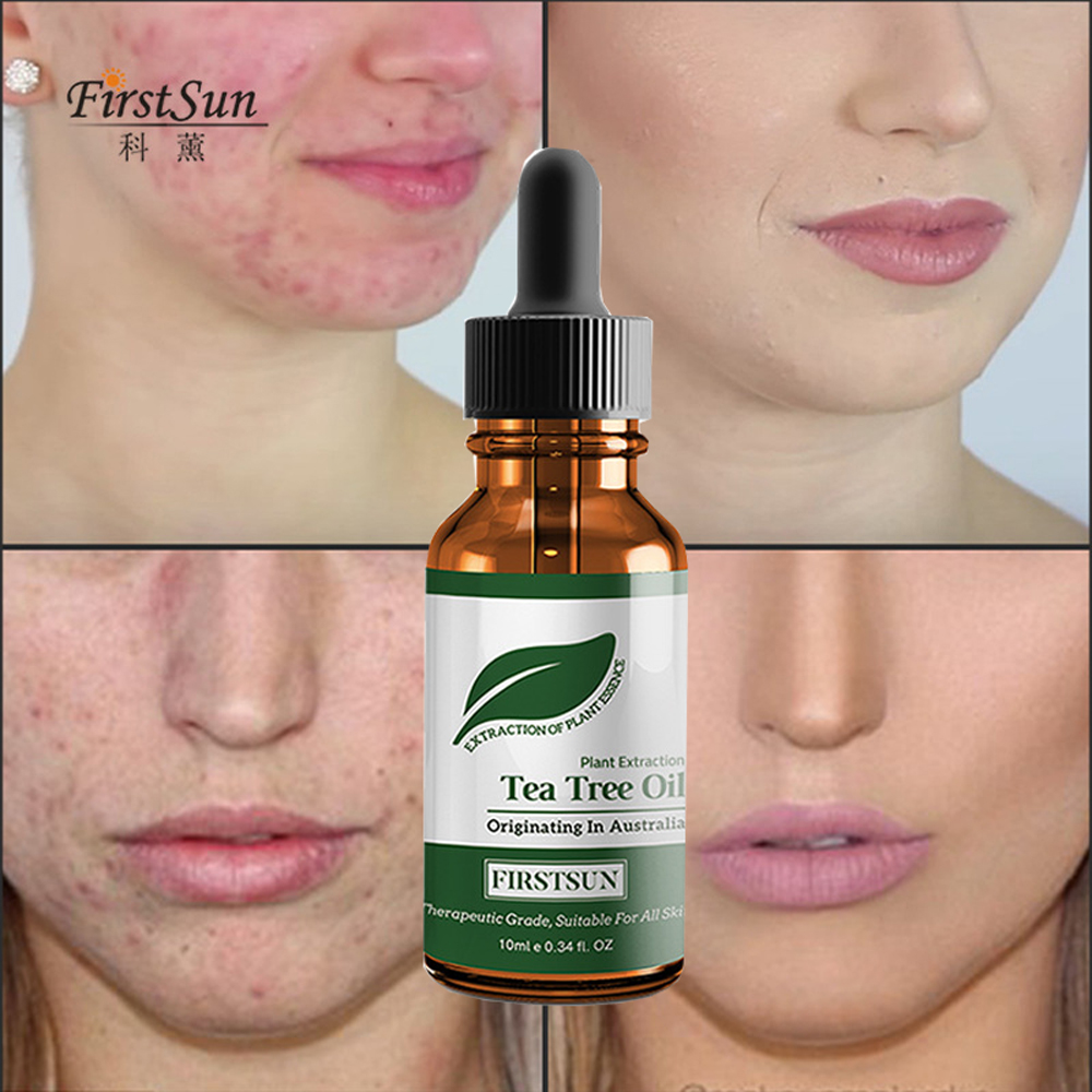 Buy Tea Tree Oil Pimples And Get Free Shipping On Aliexpress