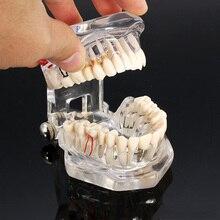 Dental Implant Disease Teeth Model With Restoration Bridge Tooth Dentist For Medical Science Dental Disease Teaching Model