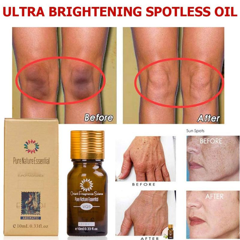 10ml/30ml Ultra Brightening Spotless Oil Whitening Dark Spot Fade Away Age Spots Remove Skin Care Hyper Pigmentation Essence Oil